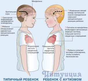 Помощь при аутизме в Барнауле.